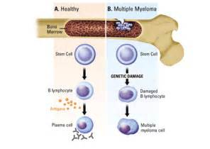 Multiple myeloma is characterized by several features, including:  Multiple Myeloma Multiple Myeloma/Other Plasma Cell Neoplasms