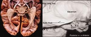 The Optic Radiations  Ex Vivo Samples   Left  Inferior