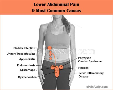 Lower Abdominal Pain: 9 Most Common Causes|Symptoms ...