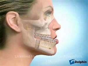 Cirurgia Ortognática de Paciente Classe 3 - YouTube