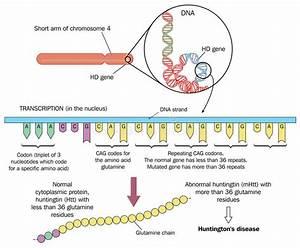 Huntington's disease stock vector. Illustration of science ...