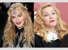 Celebrities are SHUNNING Botox and plastic surgery in