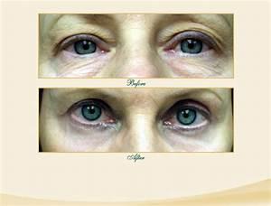 Eyelid Lift (Blepharoplasty) - A Fairly Simple Procedure ...