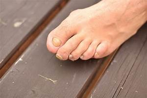 what is the best toenail fungus treatment nicefeet net