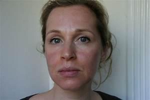 Extreem droge huid