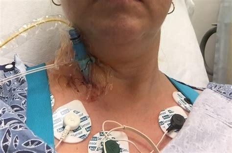 cardiac catheterization catheterization heart