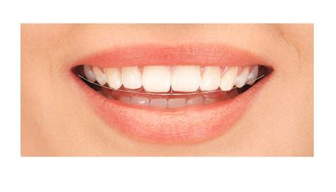 smile by design digital smile design clinica stomatologica smile experts