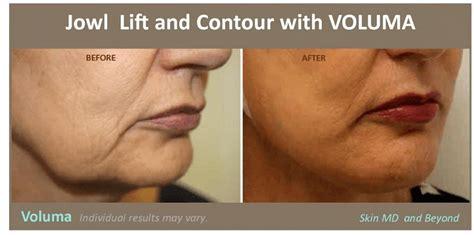 Facial Fillers Plano Tx Dermal Fillers And Anti Wrinkle