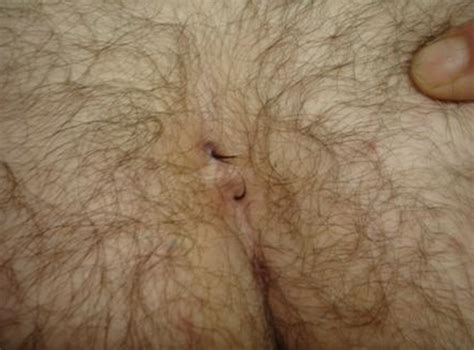 pilonidal cyst pilonidal cyst related keywords pilonidal cyst long tail