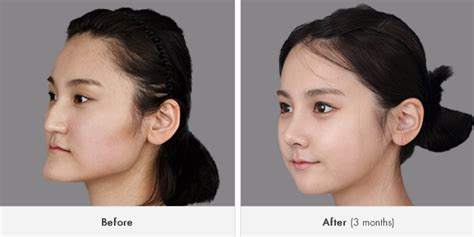 The Best Korean Rhinoplasty For Aquiline Nose Surgery