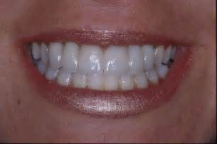 Dental Bridge Front Teeth