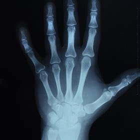 Artrita reumatoidă cu localizare la mână - clinica zetta