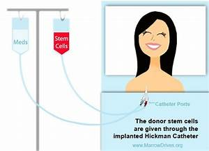 Preparing for a Stem Cell Transplant – Tips from a Stem ...