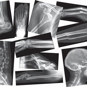 Broken Bones X Rays