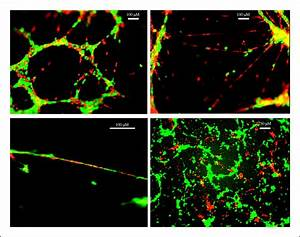 Pericytes And Endothelial Precursor Cells  Cellular