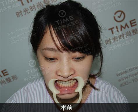 地包天会越来越严重吗_外科正牙网
