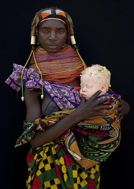 albino baby girl   mwila mother angola flickr