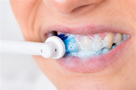 Top 6 Best Electric Toothbrush - Is it Worth the Investment