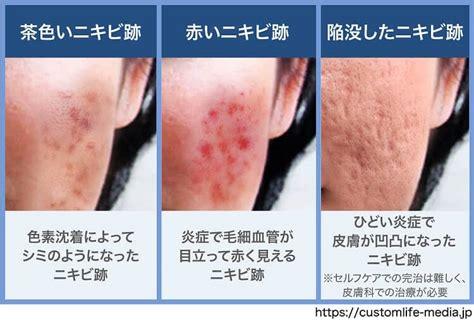 オロナイン 湿疹