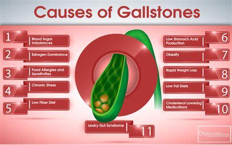 Wie man GallStones natürlich schlägt in 2020 | Gallstones ...