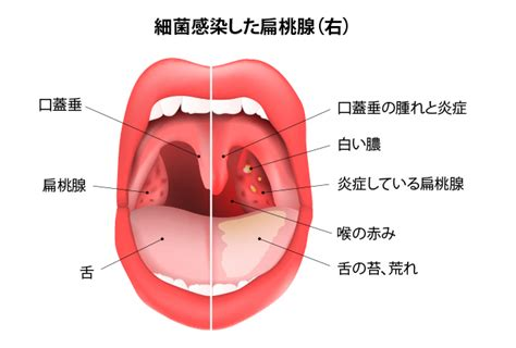 喉 の 奥 が 痛い