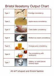 A Good Diet Chart Change Of Stoma Size Ileostomy Colostomy And Stoma