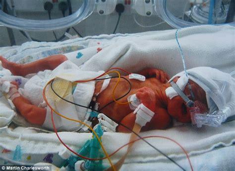 newborn baby died  severe brain injury