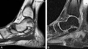 Surgical Treatment Of An Osteochondral Lesion Associated