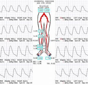 Ardms Ultrasound Physics Amp Instrumentation Practice Exam