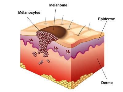 hautkrebs symptome behandlung vorbeugung creapharmade