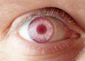 Yeux Pers Rare : fascinating facts about rare eye colors des yeux a l 39 il plein la vue pinterest yeux ~ Melissatoandfro.com Idées de Décoration