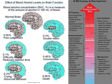 alcoholic brain
