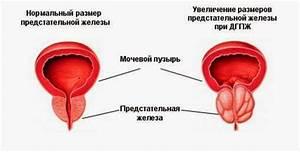 Лечение грецкими орехами аденомы