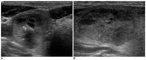 A  B  Sonography Of A Follicular Carcinoma In A 64