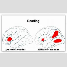 The Causes Of Dyslexia  What The Latest Science Reveals