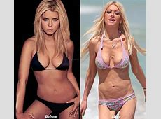 25 Worst Celebrity Plastic Surgery Disasters Ever 100
