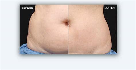 Fatfreezing Fat Reduction Procedure Coolsculpting