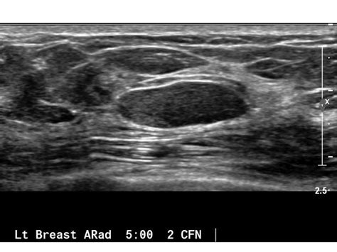 Breast Ultrasound Images Iame Screening Breast Ultrasound