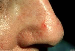 Early Basal Cell Carcinoma On Nose