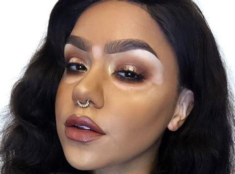 Vitiligo Makeup Tips