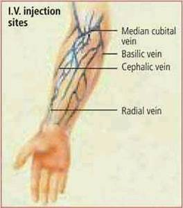 Iv Injection Sites