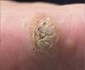 Cutaneous Viral Wart Showing Characteristic Hyperkeratotic