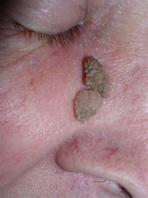 papilloma papilloma squamous cell papillomatosis