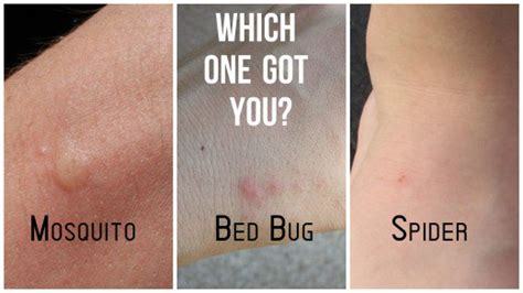 Information About Flea Bites Vs Bed Bug Bites Vs Spider Bites