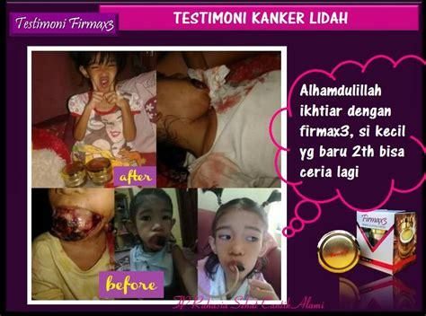 Cara Aman Ml Saat Haid Apotik Firmax3 Cream Di Indonesia Apotik Firmax3 Indonesia