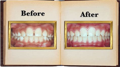 how to fix gap between spacing or gaps between teeth dr hsu braces arcadia