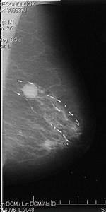Image Gallery Mammogram Cyst