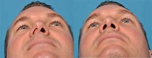 Deviated Septum  Septoplasty