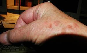 Just yesterday developed red rash splotches. Very itchy. Small