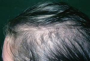 Female Pattern Baldness Picture Image On